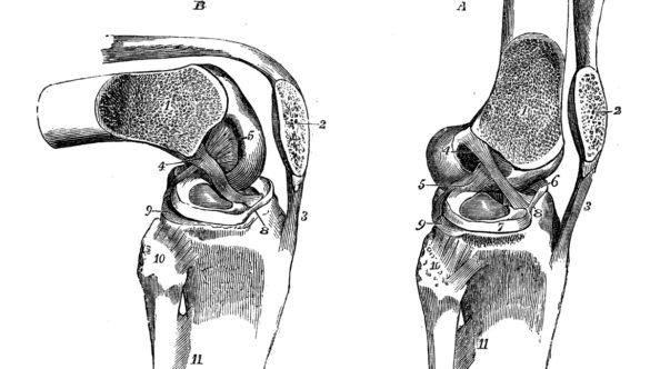 Knieoperation – und danach?